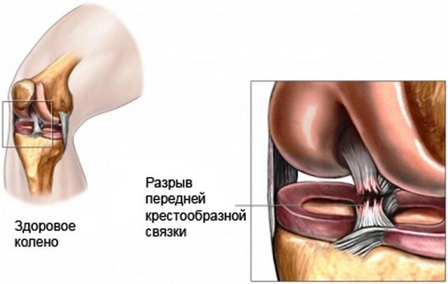 Чем лечить боль в коленях при приседании и вставании: медицинские и народные средства