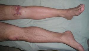Остеомиелит коленного сустава: воспаление костного мозга колена
