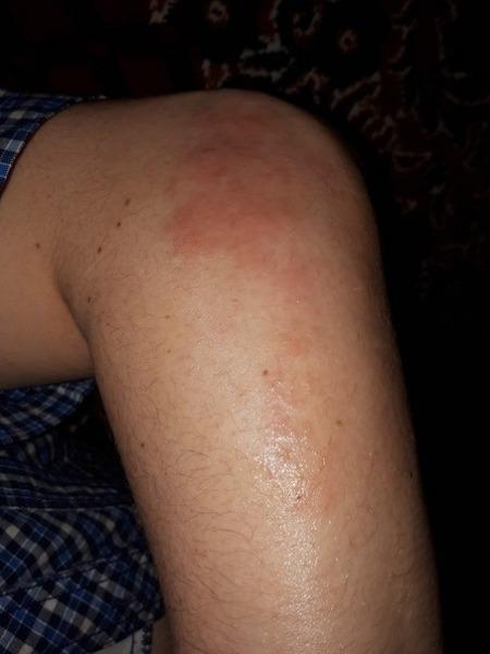 Сыпь на локтях и коленях у детей и взрослых: причины и лечение народными средствами