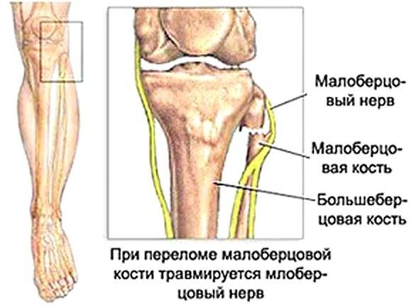 Большеберцовый и икроножный нервы: анатомия, лечение воспалений под коленом и повреждений
