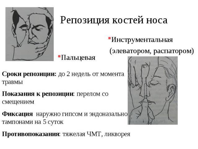 Репозиция костей носа: что это такое, как проводится процедура после перелома или старой травмы, особенности выполнения у детей, элеватор для репозиции