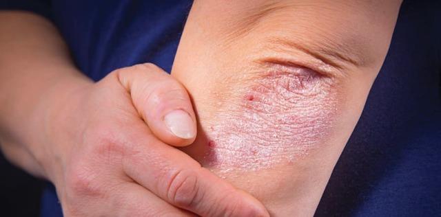 Чем лечить болячки на локтях и коленках чтоб все быстро заживало