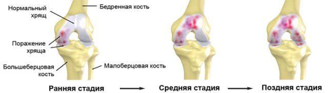 Фабелла коленного сустава: что это такое, симптомы, причины, диагностика и методы лечения