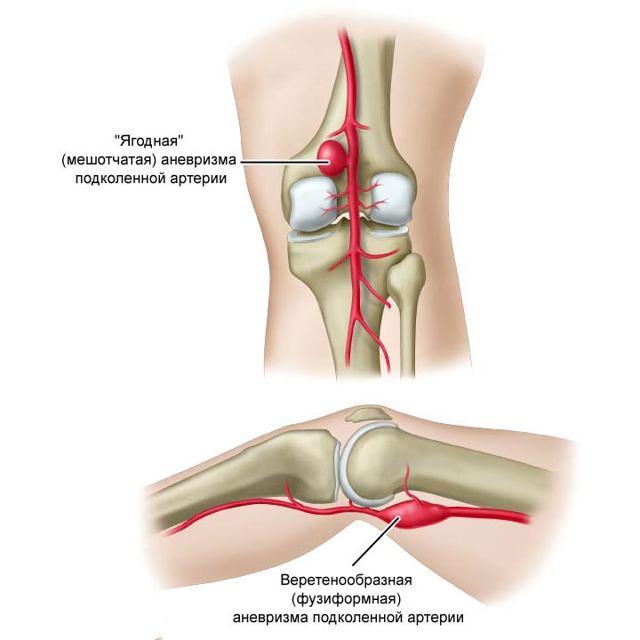 Аневризма подколенной артерии: симптомы, фото и хирургическое лечение