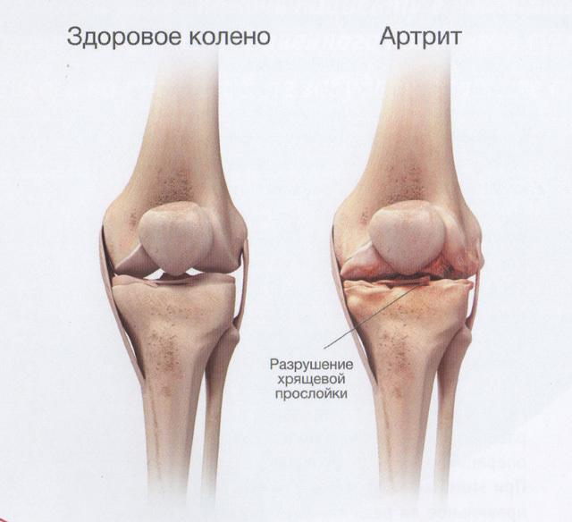 Артрит коленного сустава: симптомы и причины, признаки, факторы риска