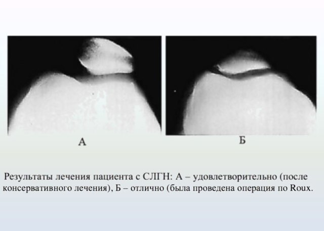 Синдром латеральной гиперпрессии надколенника: что это такое, лечение, отзывы
