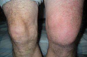 Синовиальная жидкость в коленном суставе: признаки гидрартроза и скоплений
