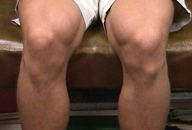 Шишка под коленом сзади и спереди: что это может быть у взрослого и ребенка