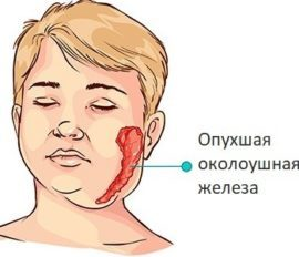 Воспаление подчелюстных слюнных желез: что это такое, причины, симптомы у взрослых