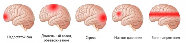 Сильная головная боль при беременности в 1, 2, 3 триместре: причины
