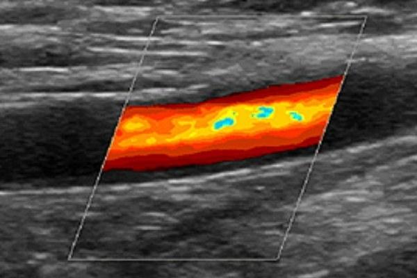 УЗДГ сосудов головы и шеи: что это такое, что показывает и как проводится допплерографическое исследование, где сделать ультразвуковую допплерографию