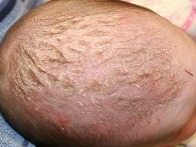 Ребенку 2-3 месяца: что делать, если шелушится кожа головы у новорожденного