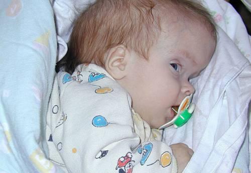 Размер головы ребенка по возрасту: таблица по месяцам, обхват головы у новорожденного, окружность головы у девочек и мальчиков