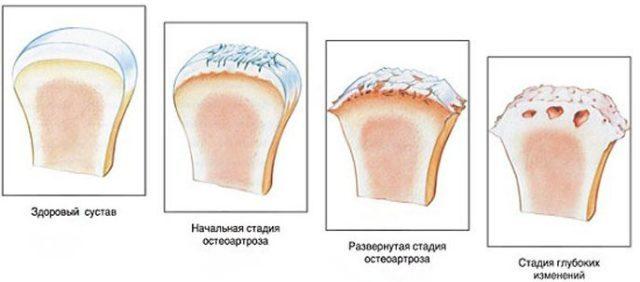 Деформирующий остеоартроз коленного сустава 1,2 и 3 степени:симптомы, лечение, коды МКБ-10
