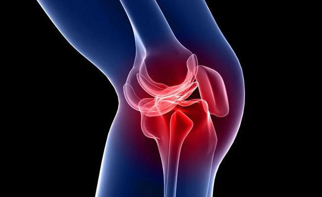 Что делать если опухло колено, не сгибается и не разгибается: причины и лечение